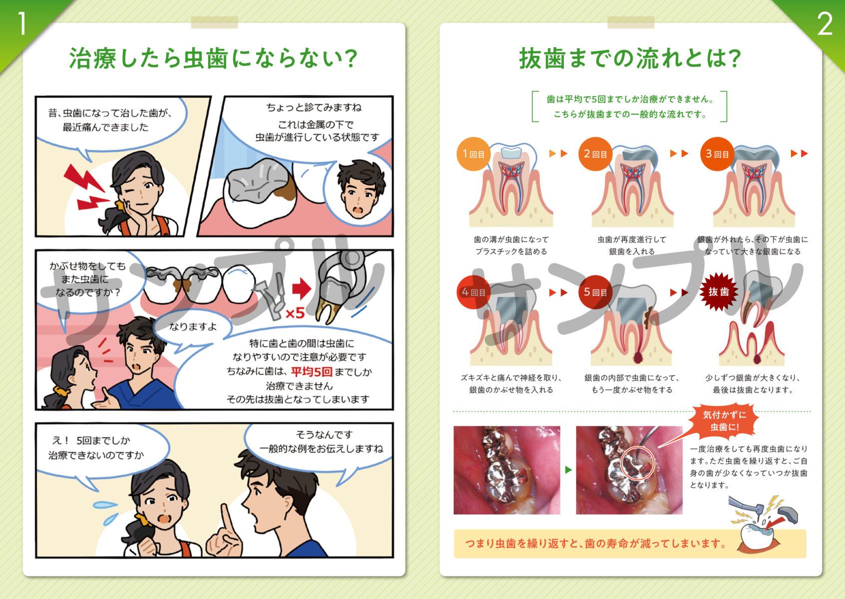 虫歯になる原因とセラミックの効果サンプル画像2