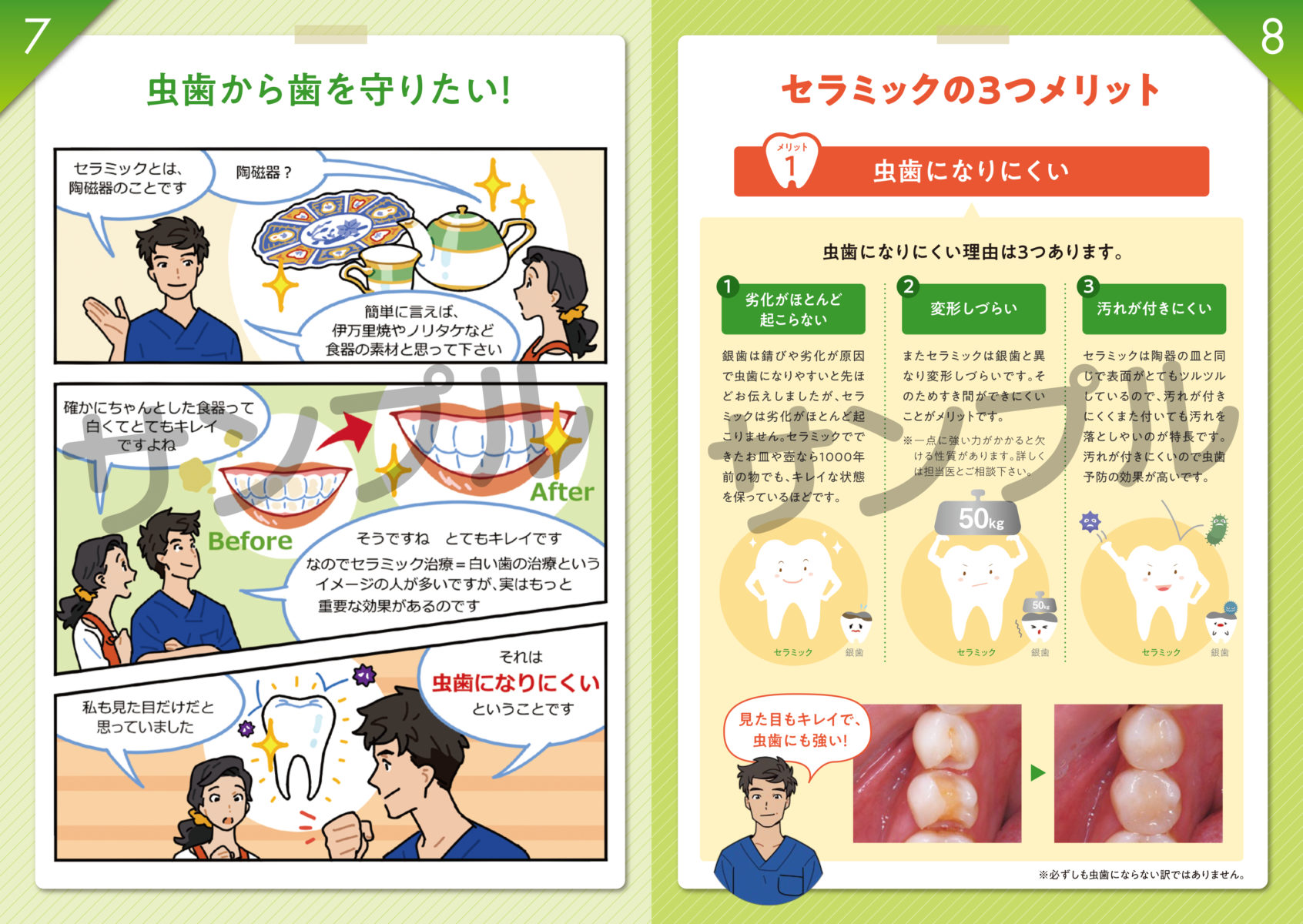 虫歯になる原因とセラミックの効果サンプル画像3